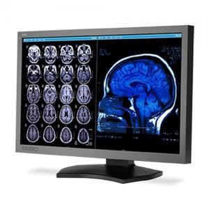 """NEC MD302C6 30"""" 6MP Diagnostic Color Display"""