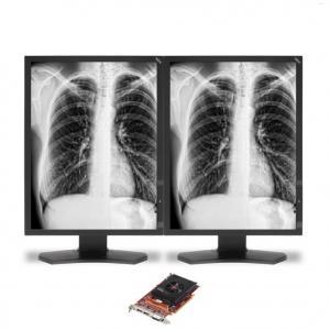 NEC MultiSync MDG3-BNDA1 (MDG3BNDA1) 3MP Grayscale Diagnostic LED-Backlit Monitor
