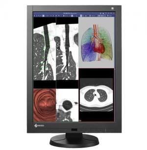 "Eizo RadiForce RX340-BK (RX340BK) 3MP 29.8"" Color LCD Monitor"