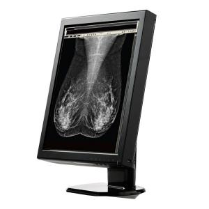 WIDE MX50 5MP 21.3 inch TFT AMLCD IPS Grayscale Medical Display