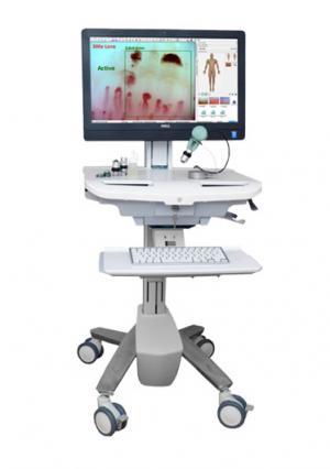 Capillaroscopy