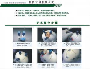 Fixation skull Lock system