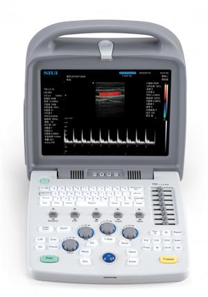 Portable 4D Color Doppler Ultrasound System Apogee1100