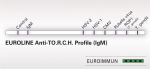 EUROLINE Anti-TO.R.C.H. Profile