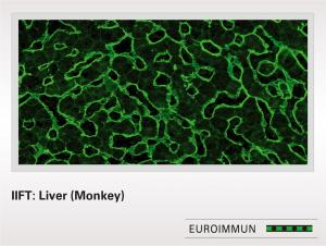 Anti-Endomysium IIFT