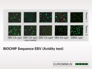 BIOCHIP Sequence EBV (Avidity Test)