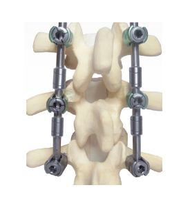 ReBorn Essence PEEK Cervical Intervertebral Cage