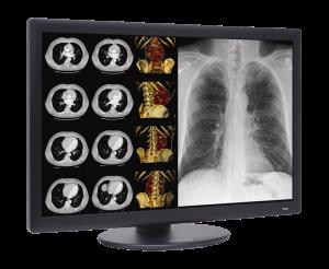 Dome¬ S6c widescreen color 6MP LED diagnostic display
