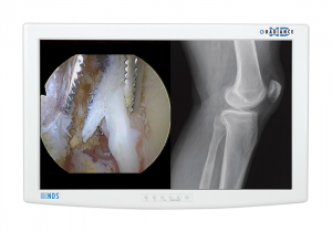 Radiance¬ HD Surgical Displays; Superior Image Quality