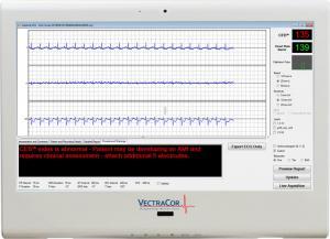 VectraplexECG Wall Monitor | VectraCor