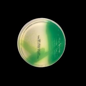 Cetrimide Agar for Pseudomonas aeruginosa