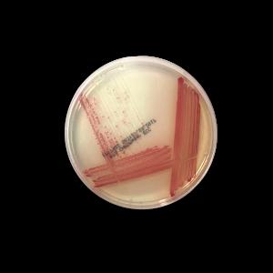 Chromogenic Ecc Agar | RTA - Molecular Diagnostics and In Vitro Products
