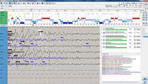 Polysomnography module (optional module for EEGDigiTrack)