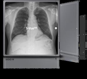 Digital Radiography GC85A   Smasung Healthcare Global