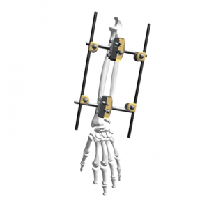 Dissection IV - Radius Fixation-External fixation system-SUZHOU AND SCIENCE&TECHNOLOGY DEVELOPMENT CO.,LTD