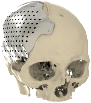 Patient-specific Cranial Implants