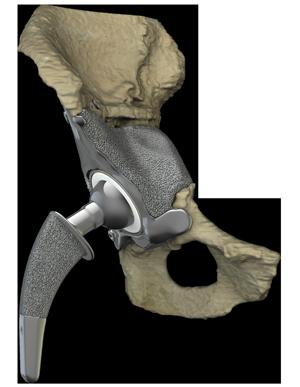 Patient-specific Hip Joint Implants
