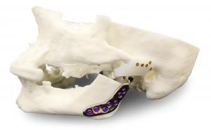 Patient-specific Temporomandibular Joint Endoprosthesis