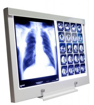 X-ray film viewer LED NGP 21 made by ultraviol