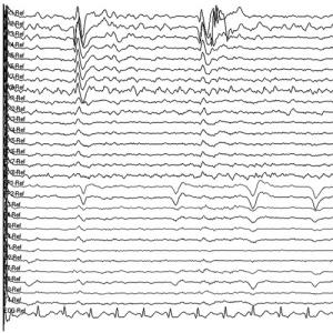 Electroencephalograph Paper (EEG Paper)