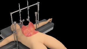 Body Contouring Retractor | Plastic Surgery |Thompson