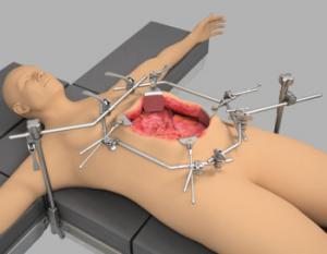 HIPEC Oncology Retractors | Surgical Retractors | Thompson