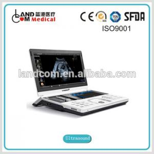 High-end Portable Color Doppler Ultrasound Machine With Ce - Buy Portable Doppler Ultrasound Machine Product on Alibaba.com