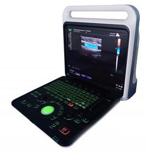 E60+ Portable Color Doppler Diagnostic System-Color Doppler Ultrasound Scanner-Mianyang Ultrasound Xianfeng Company