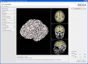 Cortex segmentation
