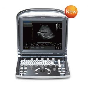 ECO 1 - Color Doppler Ultrasound|B/W System Ultrasound|Veterinary Ultrasound-CHISON Medical Technologies Co., Ltd.