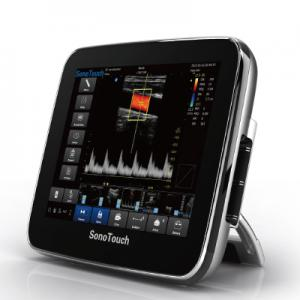 SonoTouch 30 - Color Doppler Ultrasound|B/W System Ultrasound|Veterinary Ultrasound-CHISON Medical Technologies Co., Ltd.