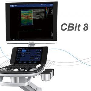 color doppler ultrasound system