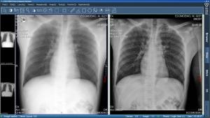 IMAGE WORKSTATION | General Medical Merate