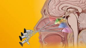 Neurosurgery | KARL STORZ Endoskope