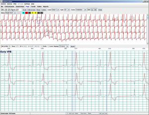 Holter Software - HE/LX Analysis | NorthEast Monitoring