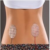 Orthopedic Care | R&D Medical Electrodes