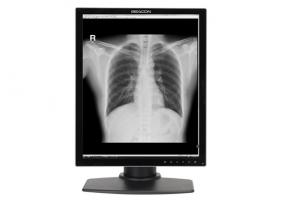 G32SP+ 3MP Grayscale Medical Display - Beacon