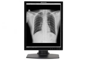 G32S+ 3MP Grayscale Medical Display - Beacon
