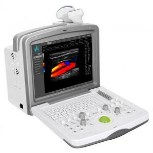 FDC6000 Full Digital Color Doppler Diagnostic System