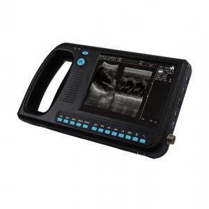 WED-3000 Palm-size Full-digital Ultrasound Diagnostic System