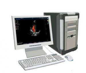 Ultrasound Workstation - Teknova