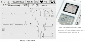 TE-30 - Patient Monitor & ECG - Teknova