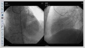 PACSPLUS Cardiac