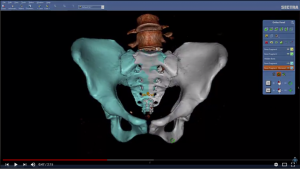 Sectra 3D Trauma for orthopaedics | Sectra Medical