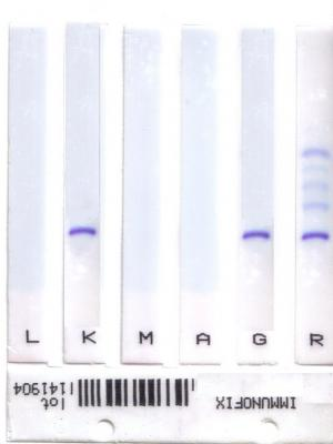 Kit for Immunofixation in fully automation. Reagent Kits