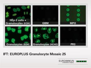 IIFT EUROPLUS Granulocyte Mosaic 25