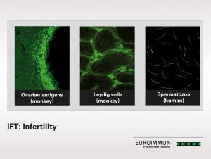 IFT: Infertility