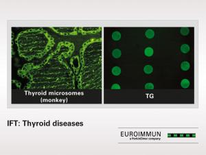 IFT: Thyroid diseases