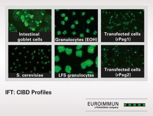 IFT: CIBD profile