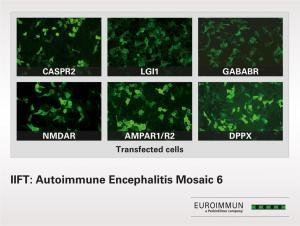 IIFT Autoimmune Encephalitis Mosaic